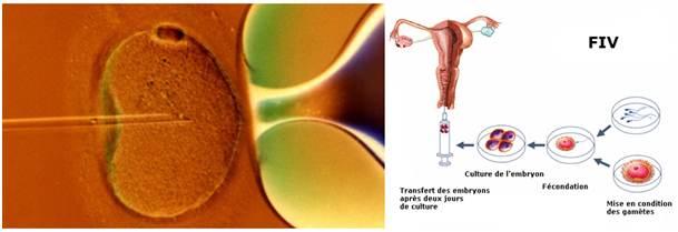 Dans les fécondations in vitro, l'acupuncture augmente le pourcentage de grossesse clinique